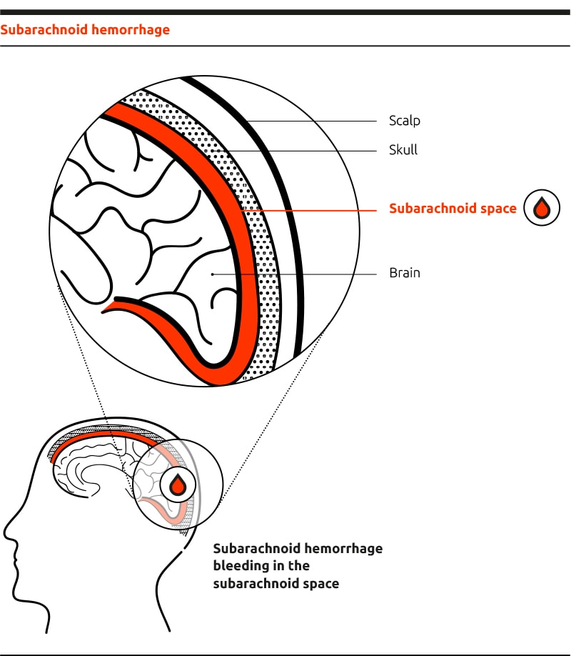 Where does aSAH occur in the brain? by Idorsia